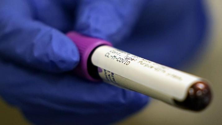 Hasil Studi Terbaru, Golongan Darah ini Lebih Kebal Dari Virus Corona